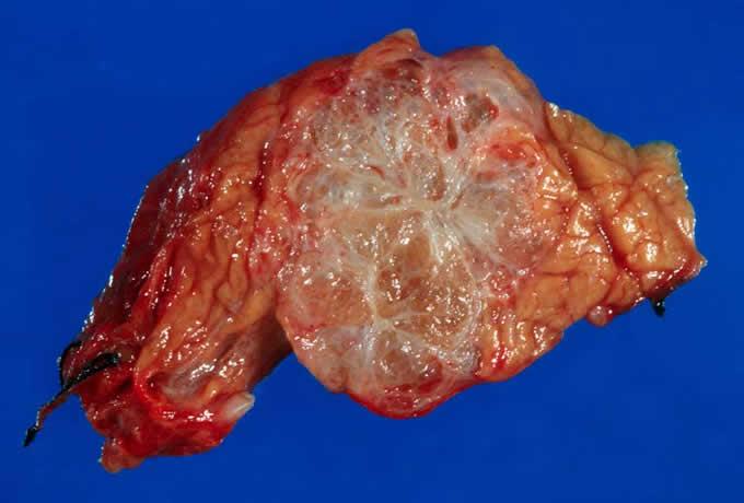 Serous Cystadenocarcinoma